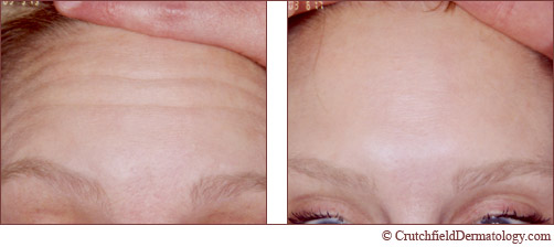 Botox forehead treatment