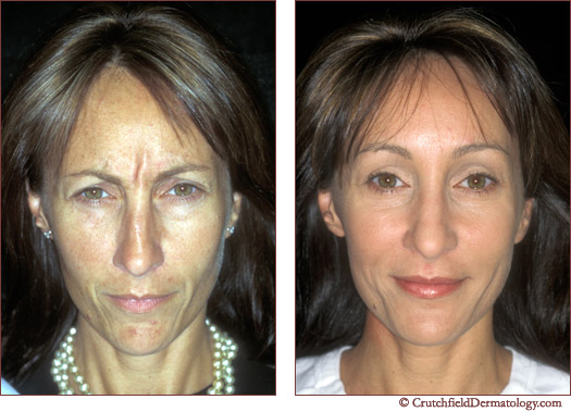Full Face Botox and Restylane treatment