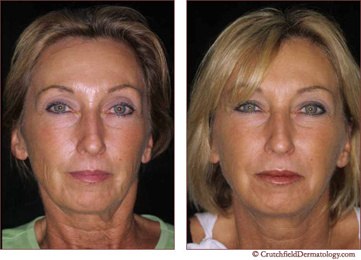 Botox Full Face treatment