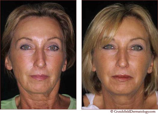 Botox Full Face treatment