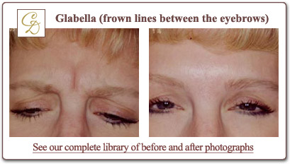 Botox glabella treatment