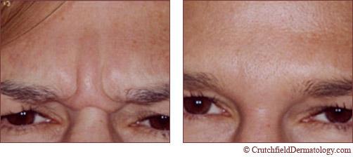 glabellar lines botox ile ilgili görsel sonucu