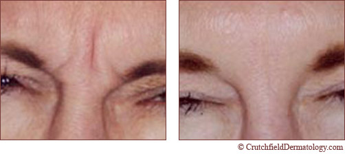 how to fix frown lines between eyebrows