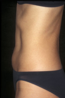After coolsculpting tummy