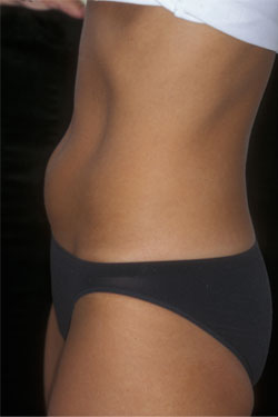 Before Coolsculpting treatment