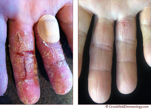 psoriasis on hands home remedy