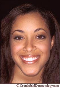 African American Ethnic Skin Care Black Dermatologist