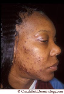 acne adult african american skin treat
