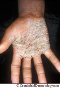Dermatitis: Definition and Patient Education - Healthline