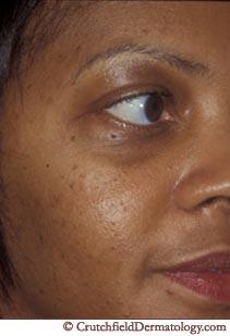 american moles African facial