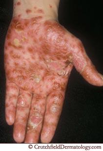 natural vegan psoriasis psoriasis natural remedies