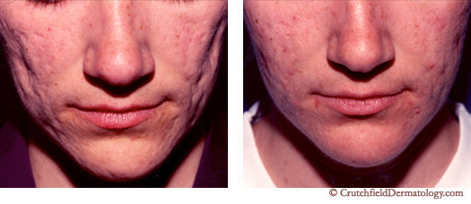 Acne Scar Treatment Facial Scars Removal Crutchfield