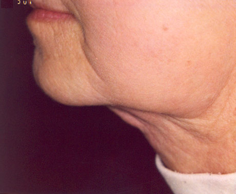 Kybella After Treatments Image