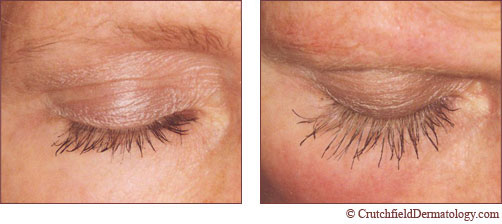 latisse to grow your eye lash