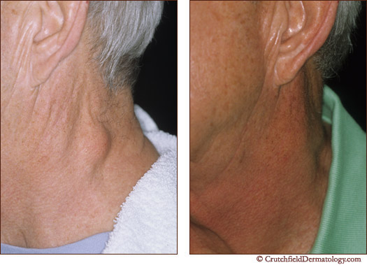 Lipoma on neck