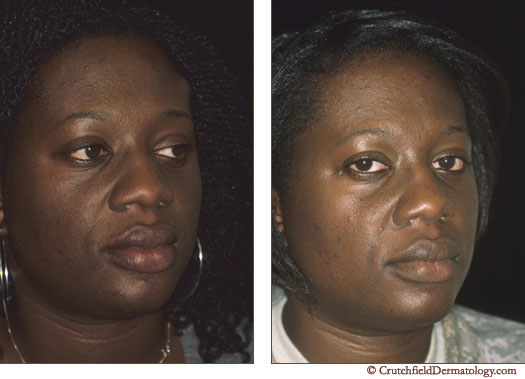 African american black woman with Lipoma