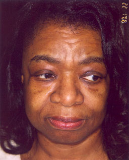 Black woman face lift before