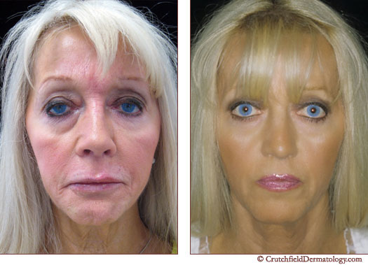 Full face cosmetic dermatology
