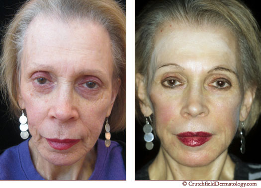Face lift before and after woman's face