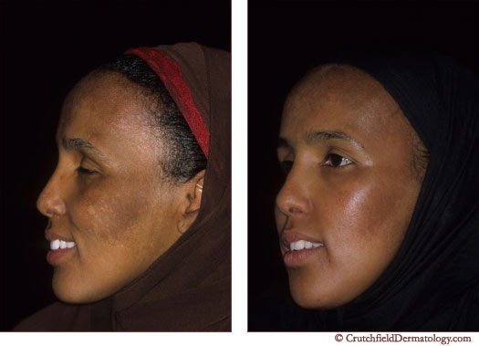 Melasma, Melanomas, Melasma Photos, skin discoloration