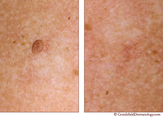 Mole Removal and treatment