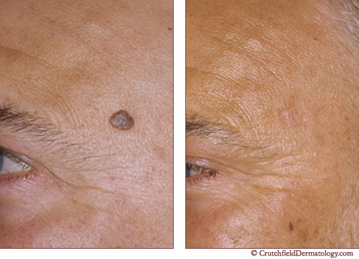 Mole removal treatments