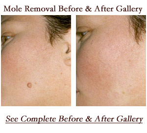 Facial moles and cancer people they
