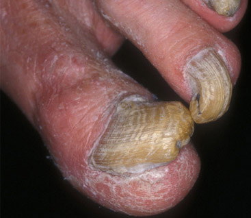 Fungal Infection Around Fingernail Area | Wedding Come True