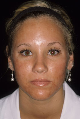 Pixel Laser Skin Care