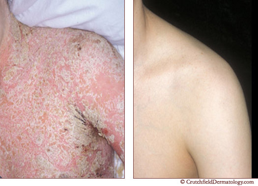 Severe Psoriasis Body Treatment