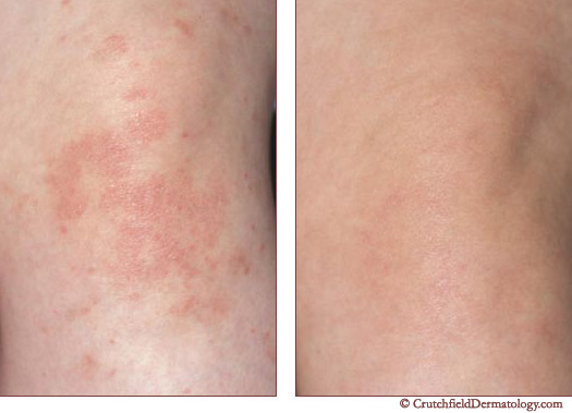 dermatologist treatment psoriasis denmark.