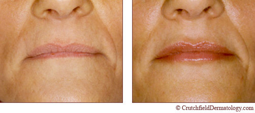 Restylane Lip Enhancement