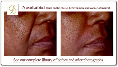 Nasolabial lines