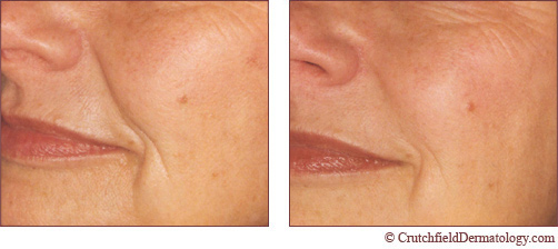 Selphyl Filler Before and After