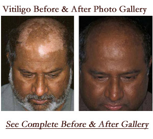 Vitiligo Skin Treatment Crutchfield Dermatology