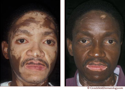 Vitiligo before and after treatment photo