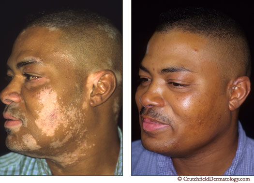 Before and After Vitiligo treatment in Eagan, MN